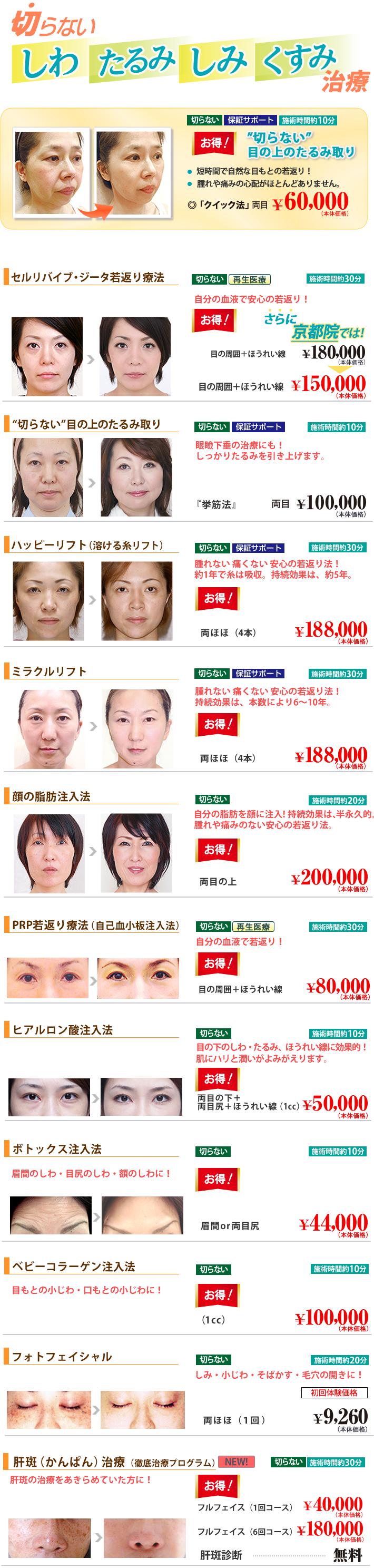 京都院のお得情報