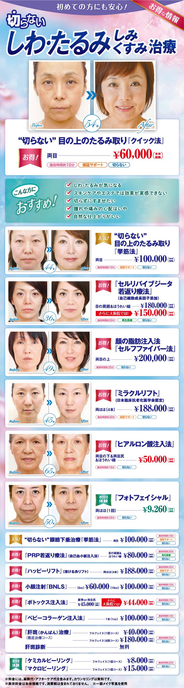 大阪院のお得情報
